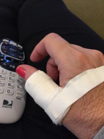 Julie's sabering injuries; more than just an ego bruising.